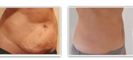 Mini-lifting abdominal (mini-abdominoplastie) avec lipoaspiration du ventre