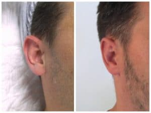 recollement-oreille-homme