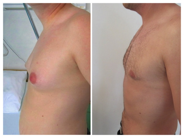 reduction-seins-homme