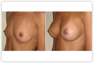 Augmentation mammaire par implants ronds de 300cc