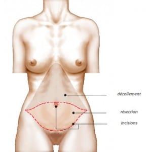 Principe de l'abdominoplastie et explication de la cicatrice abdominale inférieure