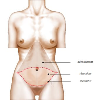 Principe de l'abdominoplastie avec repositionnement ombilical