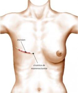Cicatrice laissée par la mammectomie