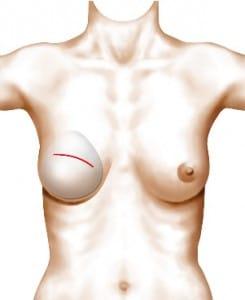 Pose de l'implant mammaire via la cicatrice de mammectomie