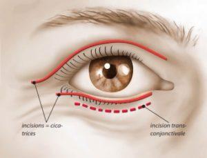 Les incisions pour une blépharoplastie (l'incision trans-conjonctivale est une technique sans cicatrice)