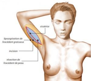 Lifting des bras avec incision longitudinale