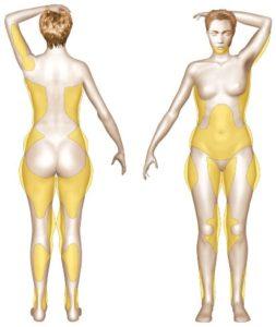 Zones traditionnellement traitées par la liposuccion
