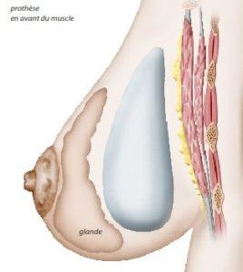 Implant mammaire positionné derrière la glande mammaire (position retro-glandulaire)