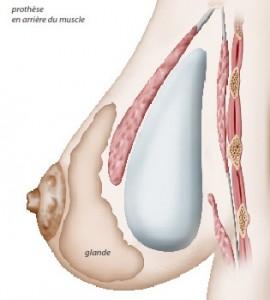 Implant mammaire positionné sous le muscle pectoral (position retro-pectorale)