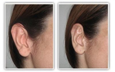 Résultat d'une chirurgie des oreilles décollées