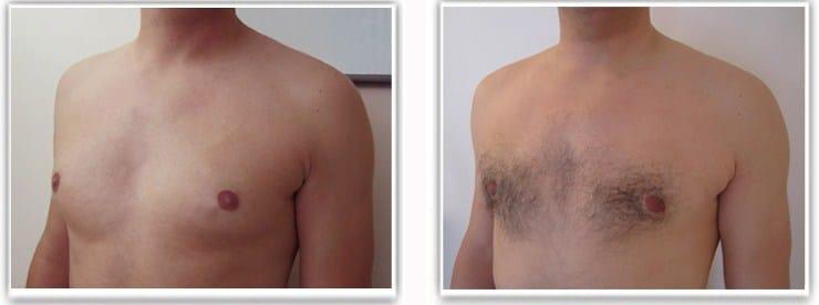 Résultat d'une operation pour adipo-gynecomastie chez un homme