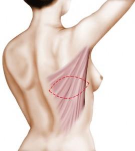 Zone de prélèvement du muscle grand dorsal