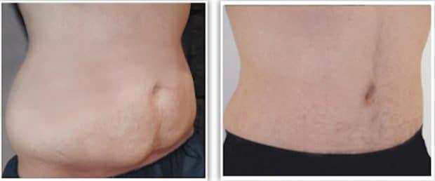 résultat d'abdominoplastie associée à une liposuccion du ventre et des flancs