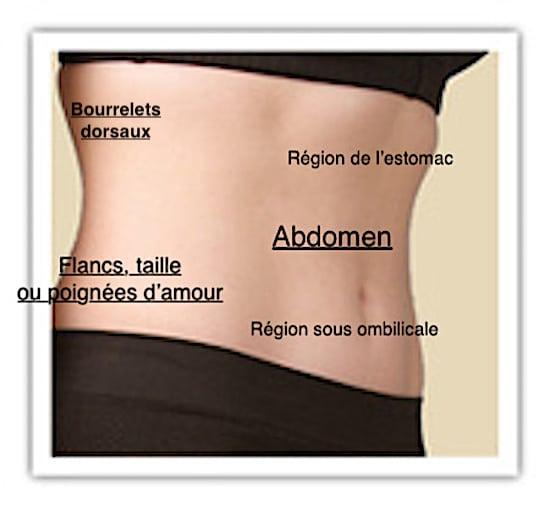 Schéma des parties du ventre pouvant être traitées par liposuccion