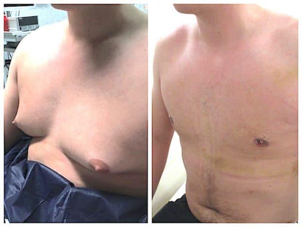 aspect des cicatrice au 3ème jour après une correction chirurgicale de gynecomastie