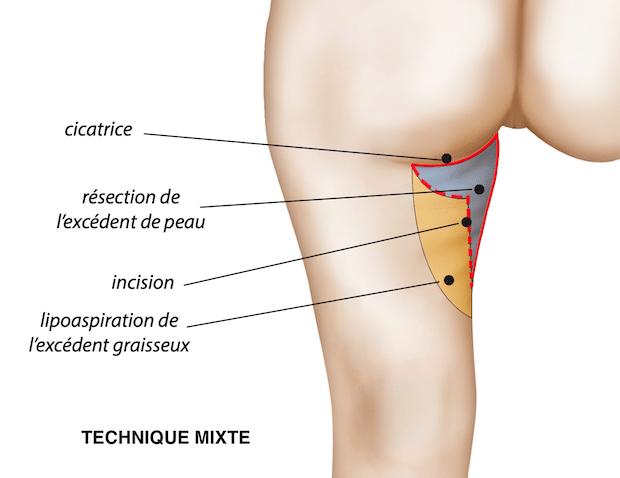 Association des 2 incisions (verticale et horizontale) dans les cas d'un amaigrissement majeur