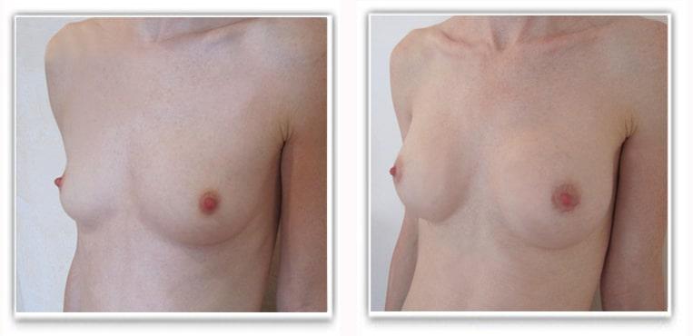 Augmentation par implants mammaires de 240cc en rétro-pectoral par voie hémiaréolaire inférieure