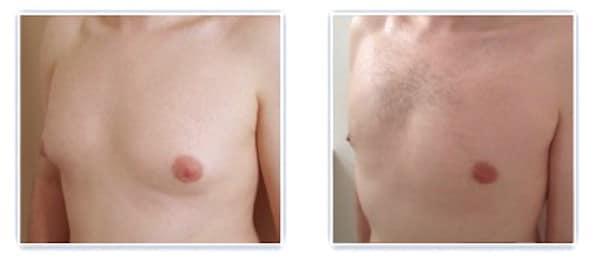Autre résultat après traitement chirurgicale gynecomastie bilatérale mixte