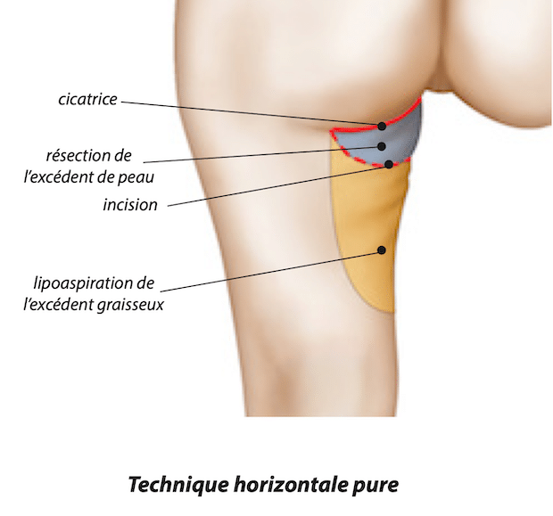 Disposition de la cicatrice du lifting de cuisses dans la technique horizontale pure