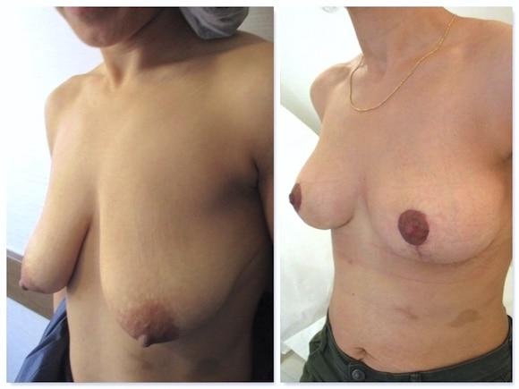 Cicatrices en T de ptose mammaire en postopératoire