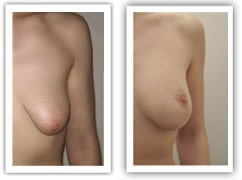 Malformation des seins tubéreux corrigée par plastie et prothèses