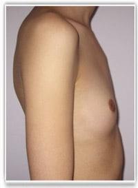 Hypotrophie mammaire prise en charge par la Sécurité Sociale