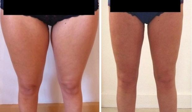 Résultat d'une lipoaspiration des genoux rejoignant une lipoaspiration circulaire des cuisses