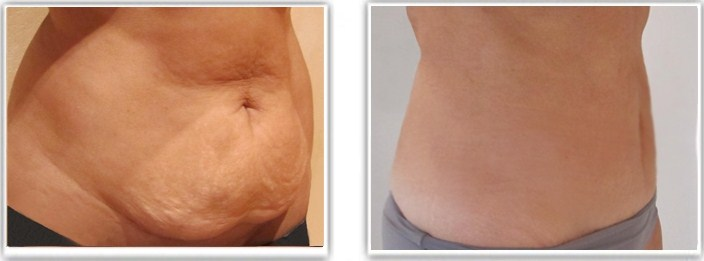 Liposuccion abdominale avec mini-abdominoplastie