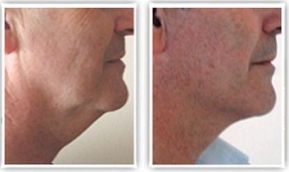 Liposuccion du cou combinée à un lifting cervical localisé