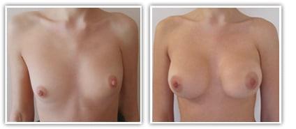 malformation du syndrome de Poland du sein droit chez une femme traitée par prothèses