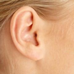 otoplastie (chirurgie des oreilles)