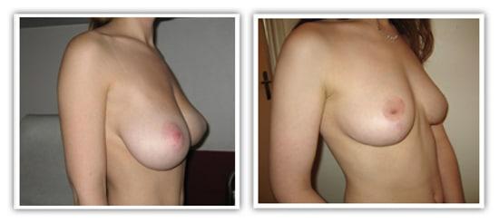 Plastie mammaire de réduction