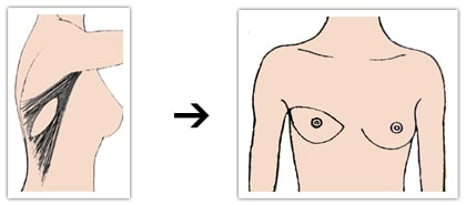 Principe de reconstruction mammaire par lambeau de grand dorsal musculo-cutané