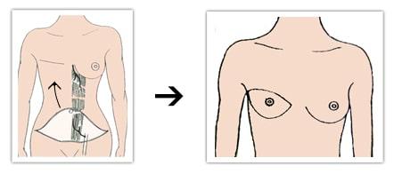 Principe de reconstruction mammaire par lambeau de grand droit (TRAM)