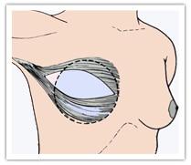 Principe de reconstruction mammaire par prothèse en position rétromusculaire