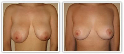 Résultat d'une correction de ptose et d'asymetrie mammaire