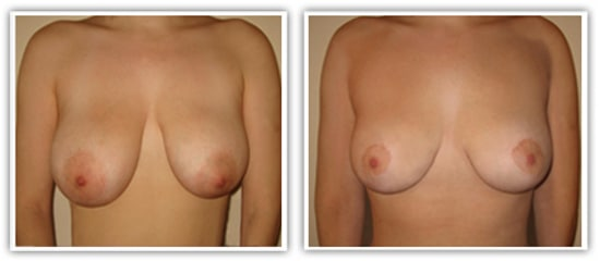 Reduction mammaire avec correction d'asymétrie mammaire
