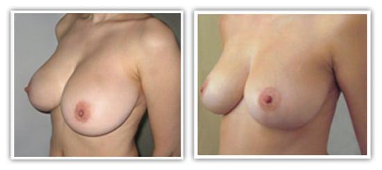 Reduction mammaire bilatérale à cicatrice en T inversé