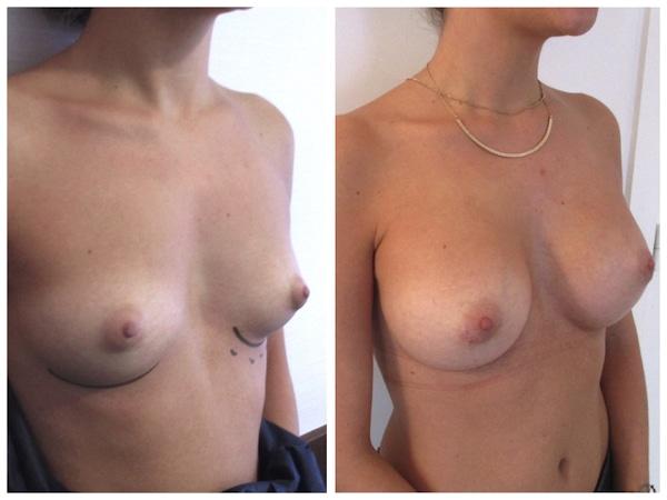 Résultat après pose de prothèses mammaires