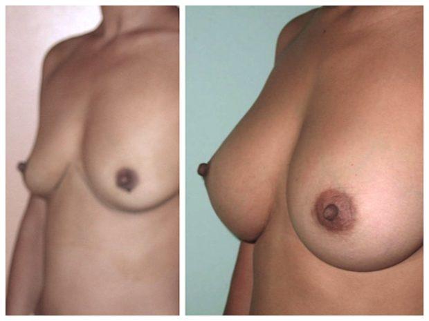 Choix avant l'augmentation mammaire de prothèses de 330cc