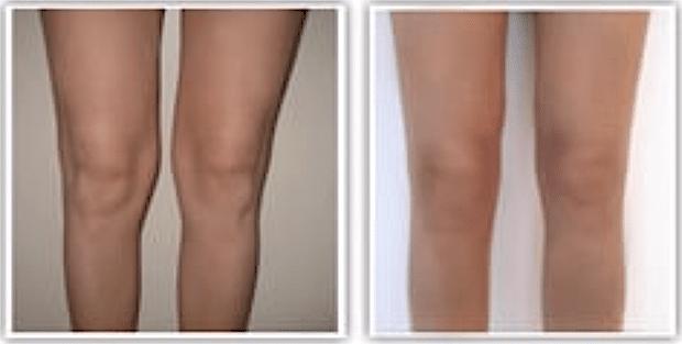 Résultat avant-après d'une liposuccion des genoux