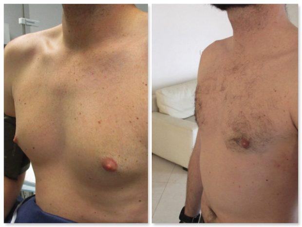 Resultat final d'une operation d'adipomastie et de gynecomastie chez un homme