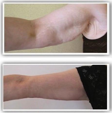 Résultat de lifting de bras après amaigrissement par by pass