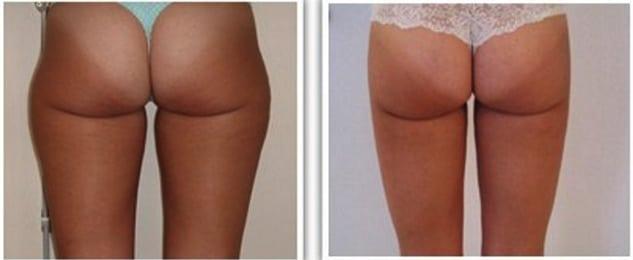 Résultat de liposuccion à 6 mois