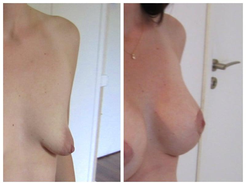 resultat-seins-tubereux-plastie-verticale