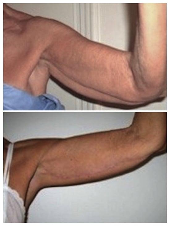 Résulat avant après de l'opération à cicatrice longitudinale