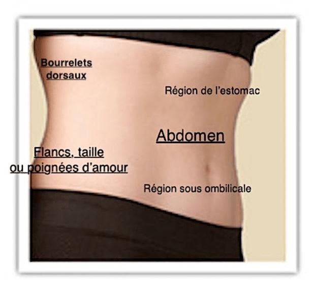 Schéma des zones de l'abdomen pouvant être traitées par lipoaspiration