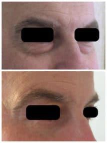 Résultat chez un homme d'une chirurgie esthétique des paupières inférieures par voie conjonctivale pour un rajeunissement naturel du regard