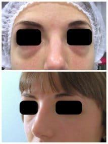Poches graisseuses situées sous les yeux d'origine congénitale responsable d'un air fatigué. Le résultat de la blépharoplastie inférieure est à 3 semaines
