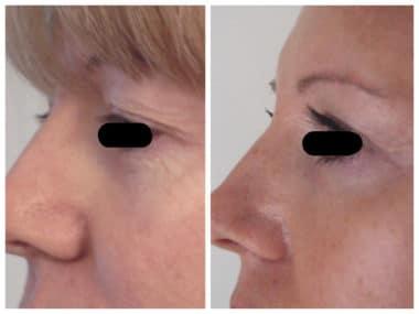 Traitement d'une regard triste et fatigué en raison de paupières tombantes: blépharoplastie supérieure. La cicatrice est cachée dès le début dans le pli palpébral supérieur et ne se voit pas.